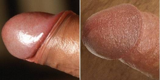 ... foreskin retracted, is that dry glans becomes rather more